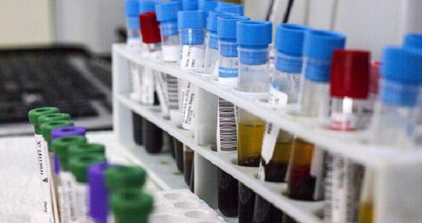 L'Aquila, laboratorio analisi: nuova procedura individua i germi in pochi minuti