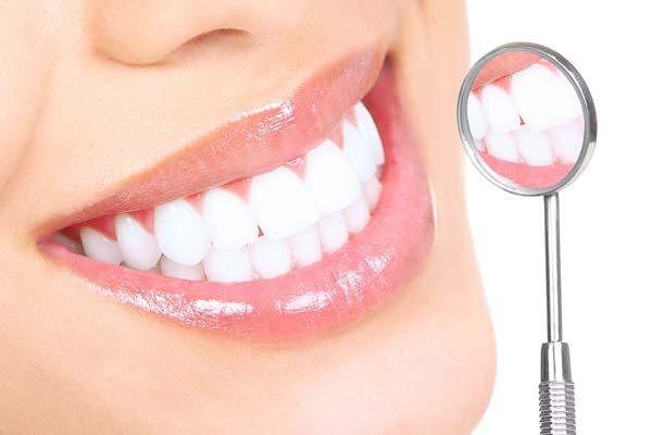 Che smile studio dentistico: sbiancamento denti|Corropoli