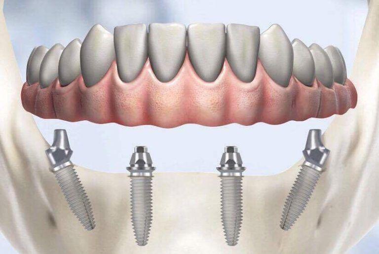 Studio Dentistico Abbadini: implantologia a carico immediato o differito  Alba Adriatica