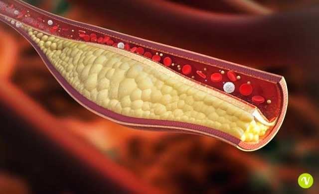 """Teramo, """"Farmacie Specializzate"""" sensibilizzano sui rischi del colesterolo"""