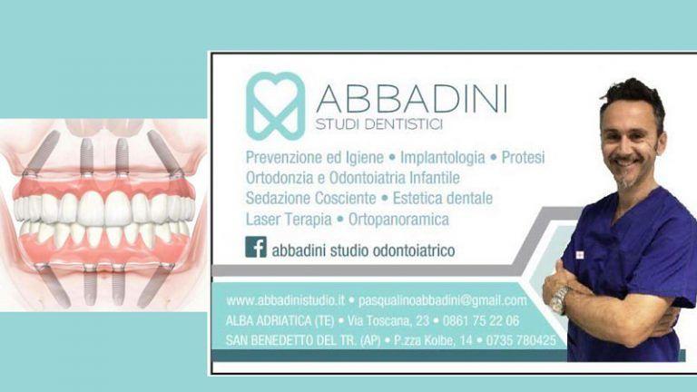 IMPLANTOLOGIA A CARICO IMMEDIATO O DIFFERITO Studio Odontoiatrico Abbadini I Consigli del Dott.Pasqualino Abbadini