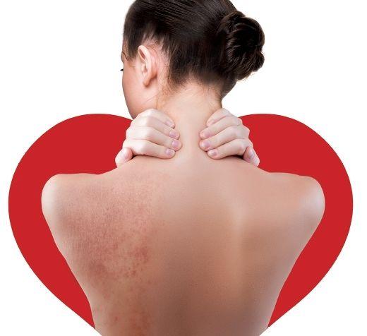 Ortona, visite dermatologiche per chi soffre di dermatite atopica
