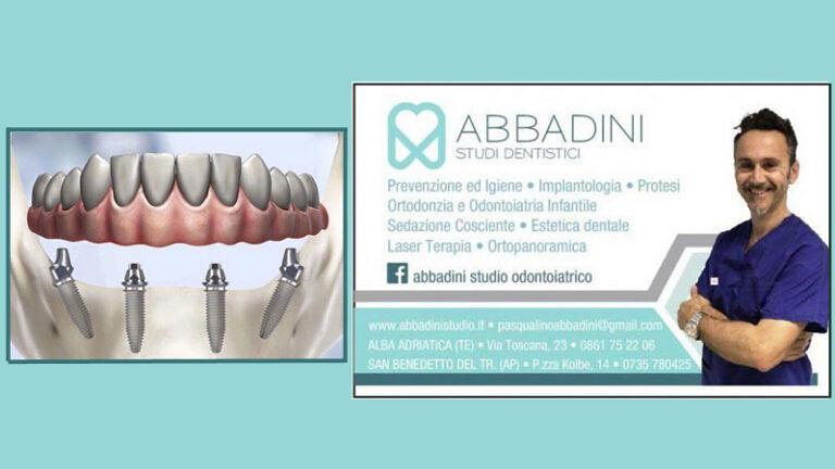 Il Dott. Abbadini ci introduce all'IMPLANTOLOGIA A CARICO IMMEDIATO | STUDIO ODONTOIATRICO ad Alba Adriatica (TE) e San Benedetto del Tronto (AP)