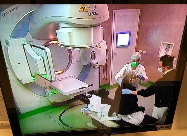"""Trattamento radioterapico dei tumori al retto, studio della Radioterapia oncologica di Chieti pubblicato sulla rivista scientifica """"In Vivo"""""""
