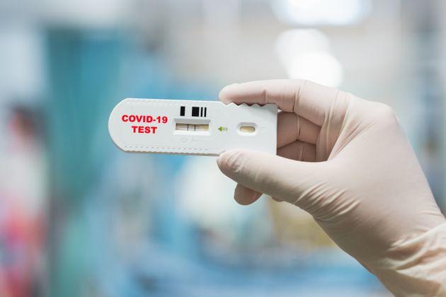 Covid19, in arrivo in Abruzzo 1milione di test rapidi