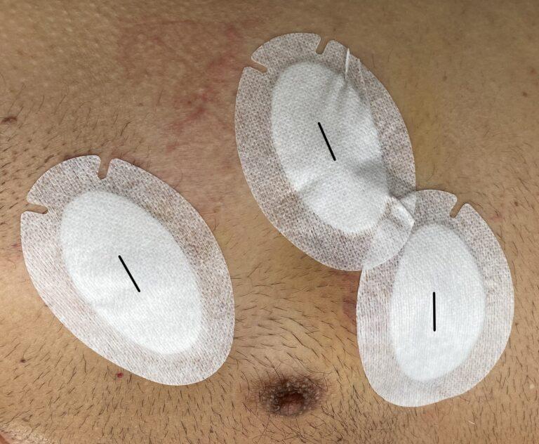 Pescara, intervento di chirurgia robotica per rimuovere tumore del mediastino